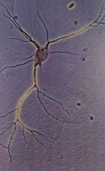 neurona bloc